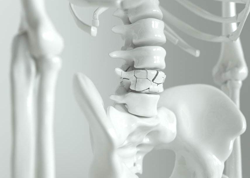 Osteologie - Ein Schwerpunkt der orthopädisch-osteopathischen Praxis Dr. med. Christine Meyer in Meppen